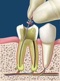 entodonzia